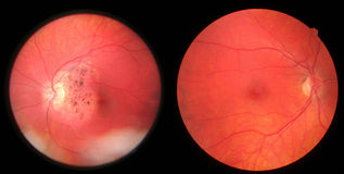 Retina - damaged and healthy. A retina with damage, left, together with a healthy one, right. Taken from the same person. Trauma was inflicted by slingshot and Royalty Free Stock Photos