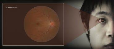 retinal bildläsning Royaltyfri Fotografi