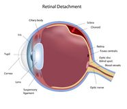 Retinal detachment Royalty Free Stock Image