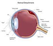 Free Retinal Detachment Royalty Free Stock Image - 20955966