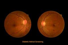Retinal rastrering för medicinsk sockersjuka för fototractional (ögonskärm) Arkivbilder