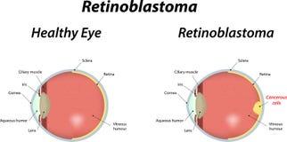 Retinoblastoma Fotografia Stock