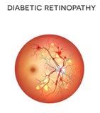 Retinopatía diabética Imagen de archivo libre de regalías