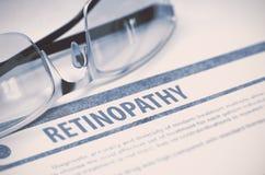 Retinopathy medicina ilustração 3D Imagens de Stock Royalty Free