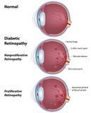 Retinopatia diabetica Fotografie Stock