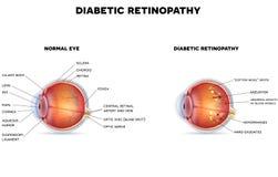 Retinopatia diabetica Fotografia Stock Libera da Diritti