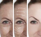 retiro antes y después de procedimientos, flecha de la dermatología de la corrección de las arrugas de la cara de la mujer imagen de archivo libre de regalías