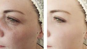 Retiro de elevación de los resultados del problema de la dermatología de la regeneración de las arrugas de la mujer antes y despu foto de archivo libre de regalías
