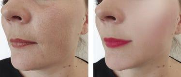 Retiro de elevación de los resultados del problema de la regeneración de las arrugas de la mujer antes y después de la corrección imagen de archivo libre de regalías