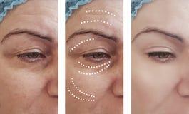 Retiro de las arrugas de la piel de la mujer antes de la cosmetología de la diferencia después del contraste de los tratamientos  imagen de archivo libre de regalías