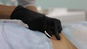 Retiro de tumores benignos en salón cosmético El uso del nitrógeno líquido en dermatología almacen de video