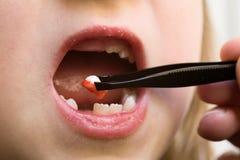 Retiro del diente Fotografía de archivo libre de regalías