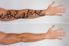 Retiro del tatuaje del laser antes y después imagenes de archivo