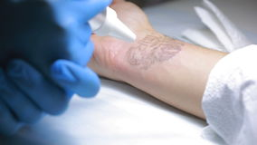 Retiro del tatuaje del laser con la mano almacen de metraje de vídeo