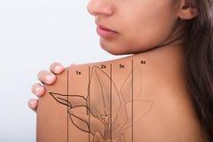 Retiro del tatuaje en hombro del ` s de la mujer fotografía de archivo libre de regalías