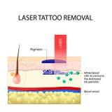 Retiro del tatuaje del laser stock de ilustración