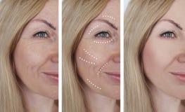 Retiro femenino de las arrugas antes y después de tratamientos de la dermatología fotografía de archivo
