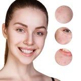 Retrato da jovem mulher com círculos Imagem de Stock Royalty Free