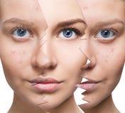 Retrato da mulher antes e depois da acne imagem de stock