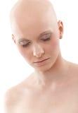 Retrato da mulher calva - câncer da mama Awereness fotos de stock royalty free
