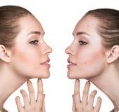 Retrato de la comparación de la piel problemática foto de archivo
