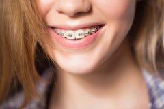 Retrato de la muchacha adolescente que muestra apoyos dentales Fotografía de archivo