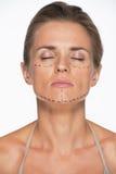 Retrato de la mujer con las marcas de la cirugía plástica en cara fotografía de archivo