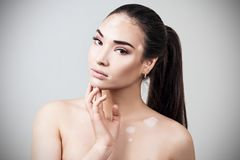Retrato de la mujer hermosa con vitiligo imágenes de archivo libres de regalías