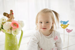 Retrato de um bebê com Síndrome de Down fotografia de stock