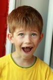 Retrato de um menino em um t-shirt amarelo cujos os dentes de leite superiores dianteiros caíssem para fora Foto de Stock