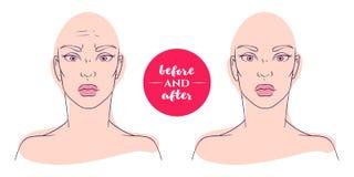Retrato de uma mulher antes e depois com defeitos cosméticos ilustração do vetor