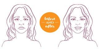 Retrato de uma mulher antes e depois com defeitos cosméticos ilustração stock