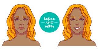 Retrato de uma mulher antes e depois com defeitos cosméticos ilustração royalty free