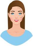 Retrato de uma mulher com um teste padrão do cirurgião plástico sobre Foto de Stock