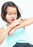 Muchacha con alergia de la piel Foto de archivo