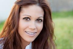 Retrato de una muchacha hermosa con los soportes Foto de archivo