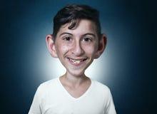 Retrato del adolescente sonriente en estilo cómico con problemas dentales Imagen de archivo libre de regalías
