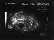 Retrato del feto del ultrasonido Fotografía de archivo libre de regalías