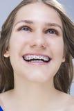 Retrato del primer del adolescente femenino caucásico con los soportes de los dientes Fotos de archivo libres de regalías