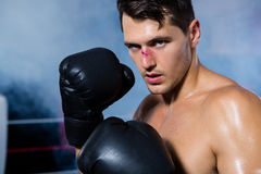 Retrato del primer del boxeador de sexo masculino con la nariz de la sangría imagen de archivo libre de regalías