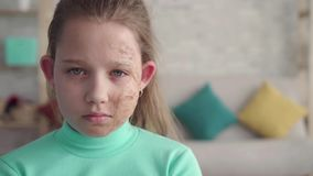 Retrato disparado dramático de uma menina triste, cansado com um defeito ou de uma cara queimada filme