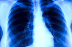 Retrato do raio X Foto de Stock Royalty Free