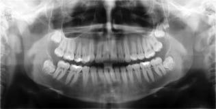 Retrato do raio X Fotos de Stock