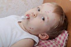 Retrato do rapaz pequeno com varicela Foto de Stock