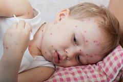 Retrato do rapaz pequeno com varicela Foto de Stock Royalty Free