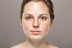 Retrato hermoso joven de la cara de la mujer de las pecas con la piel sana foto de archivo libre de regalías