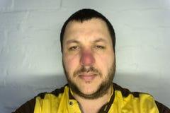 Retrato loco de un hombre de mediana edad - sin afeitar, con una nariz roja Él parece sorprendido ángulo de la parte inferior fotos de archivo libres de regalías