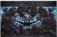 Retro Dental Xray (x-ray) of jaw Stock Image