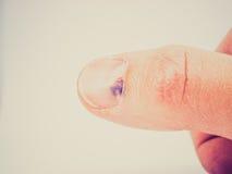 Retro look Subungual hematoma under nail. Vintage looking Subungual hematoma - collection of blood underneath fingernail (black toenail) medical condition. Aka Royalty Free Stock Images