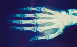 Retro look Xray. Vintage looking Medical X-Ray imaging of hand fingers used in diagnostic radiology of skeleton bones royalty free stock photo